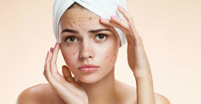 how to remove acne overnight at home