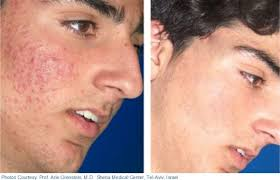 10 Types Of Laser Treatments For Pimples Acne Scars Available In India